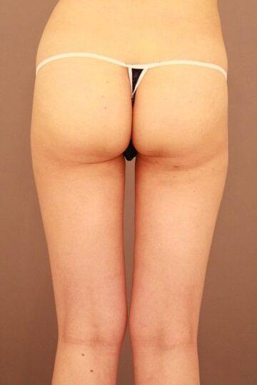 Mods Clinic (モッズクリニック)の脂肪吸引の症例写真[アフター]
