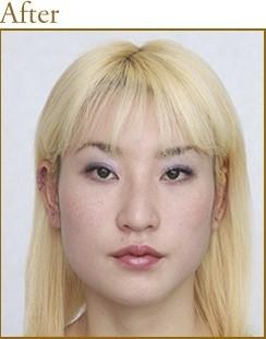 共立美容外科・歯科の顔の整形(輪郭・顎の整形)の症例写真[アフター]