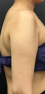 大西皮フ科形成外科医院の痩身、メディカルダイエットの症例写真[アフター]