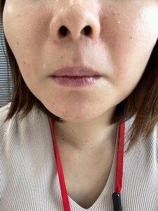 表参道美容皮膚科原宿本院の症例写真[アフター]