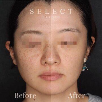 SELECT CLINIC(セレクトクリニック)のシミ治療(シミ取り)・肝斑・毛穴治療の症例写真