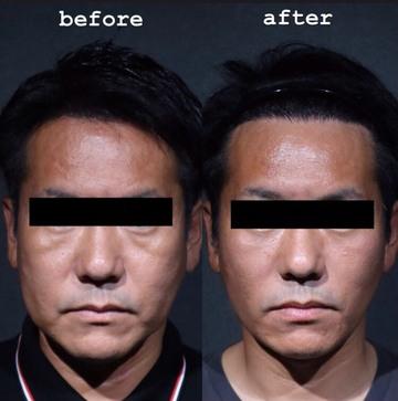 SHERIE CLINIC (シェリークリニック)の顔のしわ・たるみの整形(リフトアップ手術)の症例写真