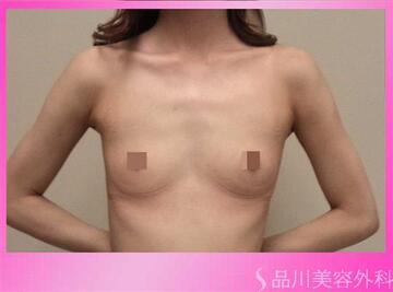 品川美容外科の豊胸手術(胸の整形)の症例写真[ビフォー]