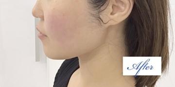 東郷美容形成外科福岡のシワ・たるみ(照射系リフトアップ治療)の症例写真[アフター]