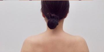 ルラ美容クリニックのその他の美容皮膚科治療の症例写真[アフター]