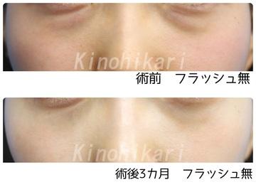 樹のひかり 形成外科・皮ふ科の目元整形・クマ治療の症例写真