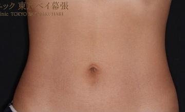 肌と歯のクリニック 東京ベイ幕張の症例写真[アフター]