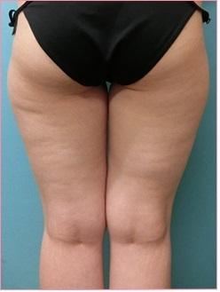 脂肪吸引【太もも】の症例写真[ビフォー]