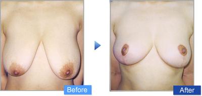 コムロ式乳房縮小術(リダクション)の症例写真