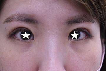 医療法人秀晄会 心斎橋コムロ美容外科クリニックの症例写真[アフター]