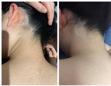 LaLa clinic ララクリニック大阪梅田院の医療レーザー脱毛の症例写真