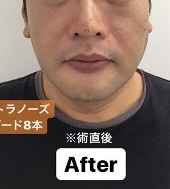 東郷美容形成外科福岡の鼻の整形の症例写真[アフター]