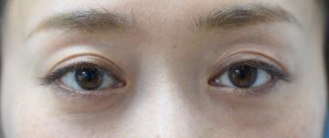 みずほクリニックの目元整形・クマ治療の症例写真[アフター]