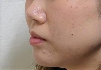 ヒアルロン酸注入シワ取り ほうれい線の症例写真[ビフォー]