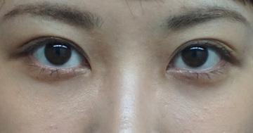 ガーデンクリニックの目元の整形、くま治療の症例写真[アフター]