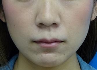 TCB 東京中央美容外科の痩身、メディカルダイエットの症例写真[ビフォー]