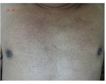 新宿ビューティークリニックの医療レーザー脱毛の症例写真[アフター]