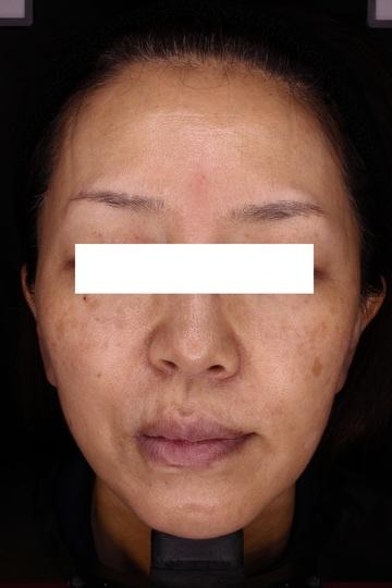 神戸アカデミアクリニックのシミ治療(シミ取り)・肝斑・毛穴治療の症例写真[ビフォー]