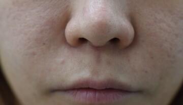 みずほクリニックの鼻の整形の症例写真[ビフォー]