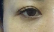東京中央美容外科・美容皮膚科の目元の整形、くま治療の症例写真[アフター]