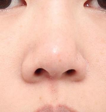 よだ形成外科クリニックの鼻の整形の症例写真[ビフォー]