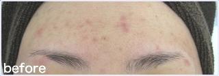 額のニキビ・ニキビ跡の治療の症例写真[ビフォー]