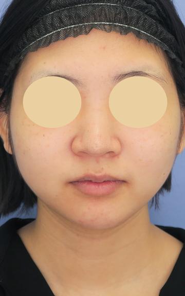 湘南美容クリニック 武蔵小杉院の鼻の整形の症例写真[ビフォー]