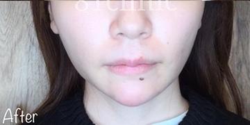 81clinicの顔の整形(輪郭・顎の整形)の症例写真[アフター]