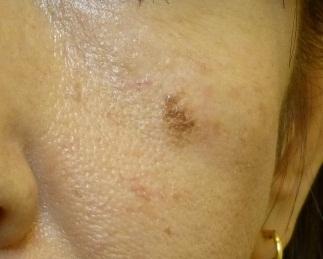 さやか美容クリニック・町田のシミ取り・肝斑・毛穴治療の症例写真[ビフォー]