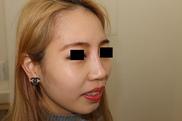 麹町皮ふ科・形成外科クリニックの鼻の整形の症例写真[アフター]