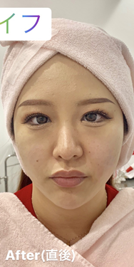ルラ美容クリニック 高田馬場院のシワ・たるみ(照射系リフトアップ治療)の症例写真[アフター]