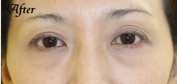 千葉中央美容形成クリニックの目元整形・クマ治療の症例写真[アフター]