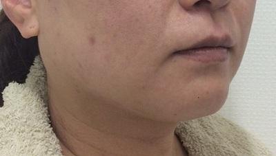 リフトアップ小顔「溶ける糸治療」でマイナス5歳の若返りの症例写真[ビフォー]