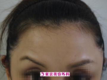 東京美容外科の顔のしわ・たるみの整形(リフトアップ手術)の症例写真[アフター]