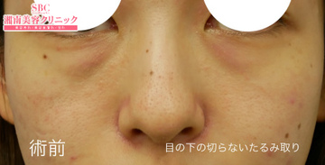 湘南美容クリニック姫路院の目元の整形、くま治療の症例写真[ビフォー]