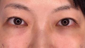湘南美容クリニック川崎院の目元の整形、くま治療の症例写真[アフター]