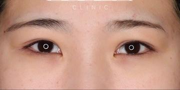 SELECT CLINIC (セレクトクリニック)の目・二重の整形の症例写真[アフター]
