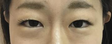 N クリニックの目・二重整形の症例写真[ビフォー]