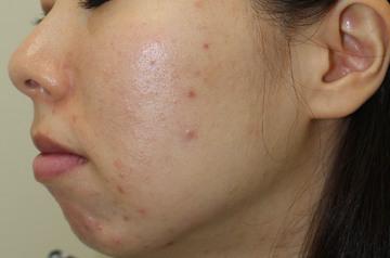 東京アクネクリニックのニキビ治療・ニキビ跡の治療の症例写真[アフター]