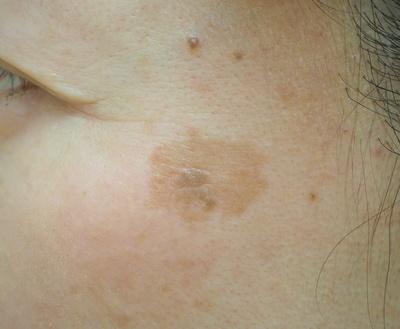 YAGレーザー+高周波電気分解(左頬のしみ+脂漏性角化症)の症例写真[ビフォー]
