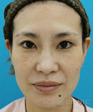 エースクリニック 名古屋院の顔のしわ・たるみの整形の症例写真[ビフォー]
