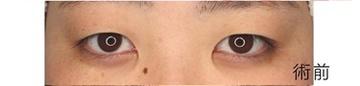 広島プルミエクリニックの目・二重整形の症例写真