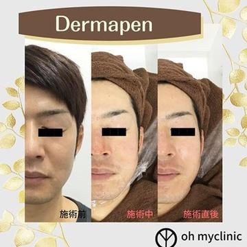 オーマイクリニック【Oh My Clinic】のニキビ・ニキビ跡の治療の症例写真