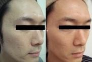 のニキビ治療・ニキビ跡の治療の症例写真