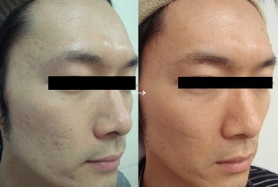 ニキビ・ニキビ痕治療の症例写真