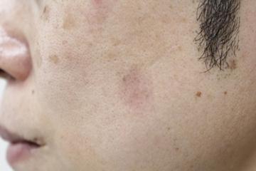 タウン形成外科クリニックのシミ取り・肝斑・毛穴治療の症例写真[アフター]
