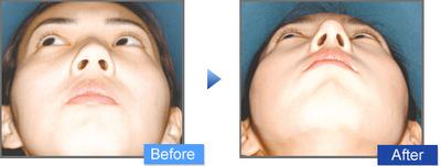 鼻尖部縮小術の症例写真