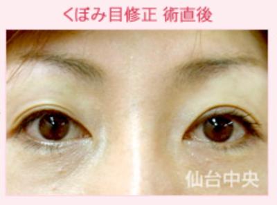 くぼみ目ヒアルロン酸注入、上まぶたの窪みを治したい[アフター]