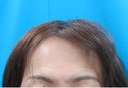 ガーデンクリニックの薄毛治療・AGA・発毛の症例写真[ビフォー]
