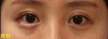 宮益坂クリニックの目・二重の整形の症例写真[ビフォー]